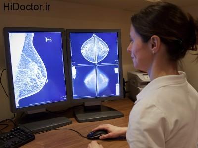 dt_140616_mammogram_technician_800x600