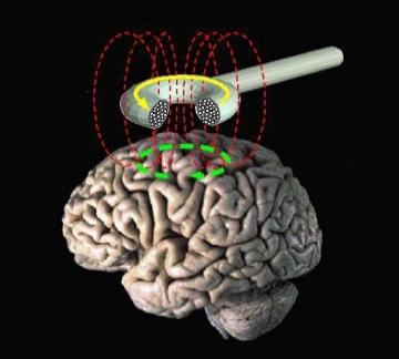 تحریک مغناطیسی مغز - ویکیپدیا، دانشنامهٔ آزاد